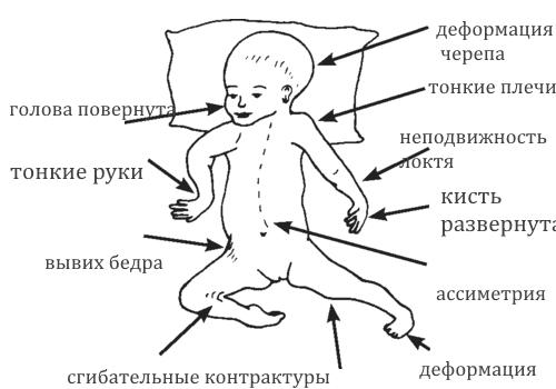 Артрогрипоз — виды, причины, симптомы и лечение