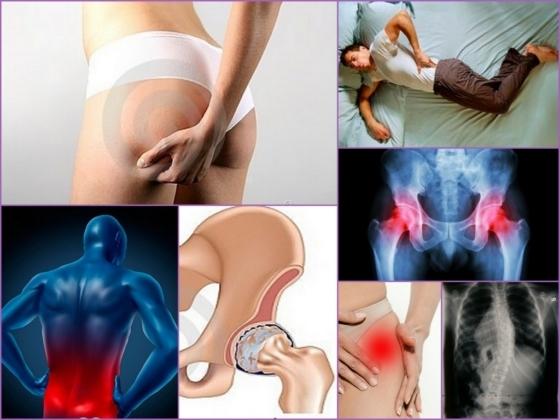 Бурсит тазобедренного сустава: симптомы и лечение