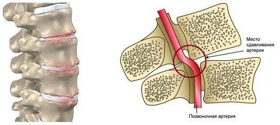 Панические атаки при шейном остеохондрозе: характерные симптомы