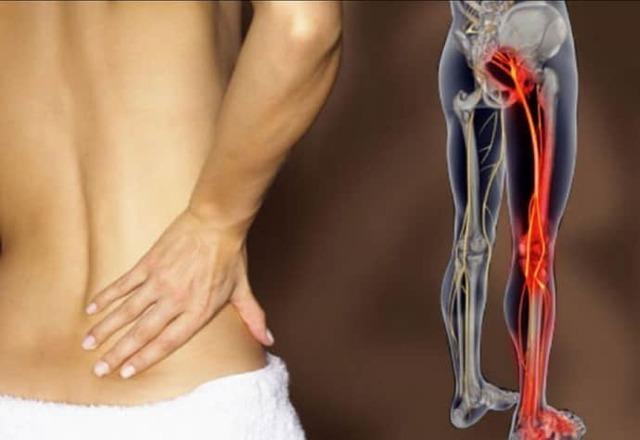 Невралгия бедренного нерва: симптомы, лечение