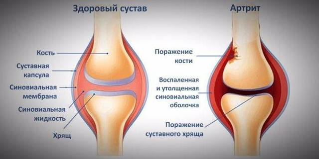 Воспаление суставов на ногах лечение