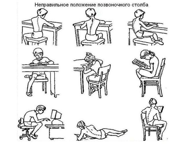 Сколиоз 2 степени: причины, фото, симптомы, лечение