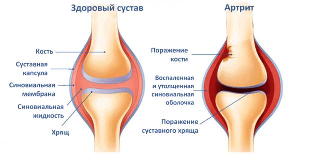 Гимнастика для колен при артрите коленного сустава