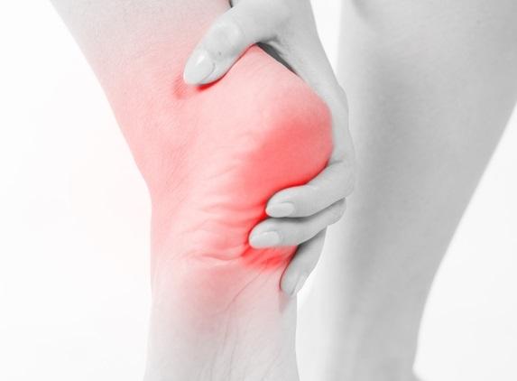 Киста пяточной кости: причины, симптомы и лечение