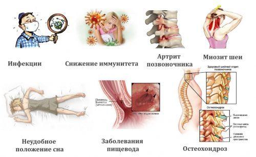 Болит шея после сна — причины и лечебные меры