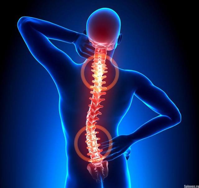 Мидокалм при остеохондрозе: принцип действия и особенности применения