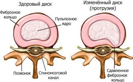 Дорзальная протрузия диска: что такое и как лечить