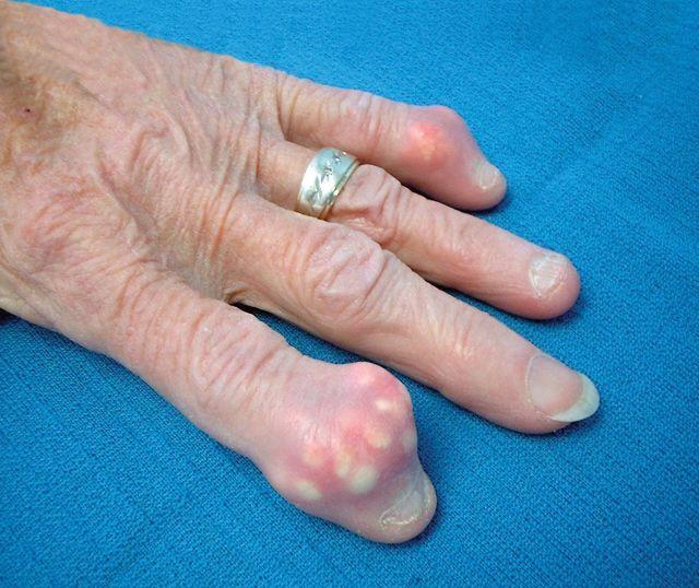 Шишка на большом пальце руки: причины, лечение, фото сустава