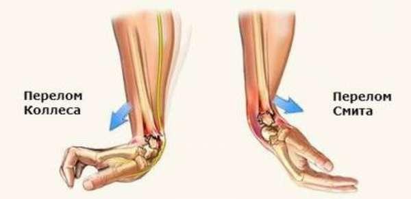 Перелом лучевой кости: виды, симптомы и лечение