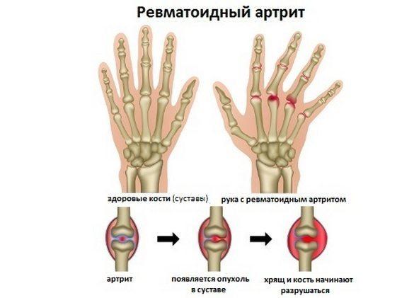 Диета при артрите: список разрешенных и запрещенных продуктов
