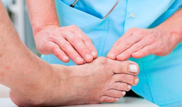 Врач подолог — кто это и какие болезни он лечит
