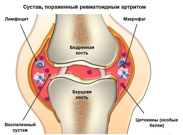 Лечение ревматоидного артрита препаратами нового поколения