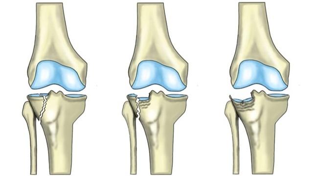 Перелом большеберцовой кости: симптомы, лечение