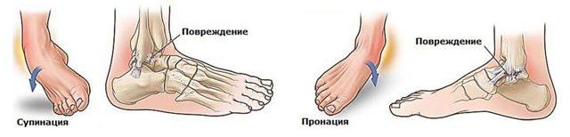 Перелом голеностопа: симптомы, первая помощь, лечение