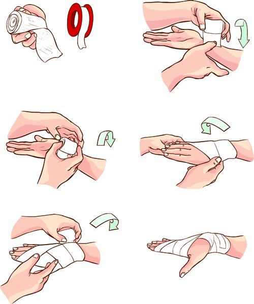 Ушиб ладони - симптомы и лечение