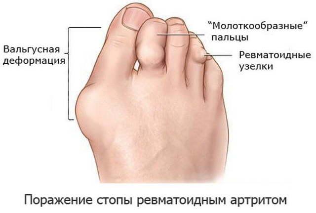 Артрит стопы: симптомы, лечение, фото суставов