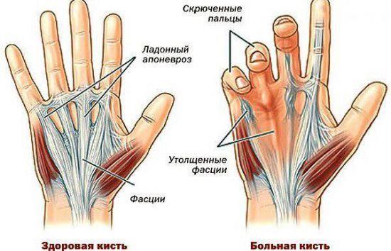 Контрактура Дюпюитрена - лечение без операции