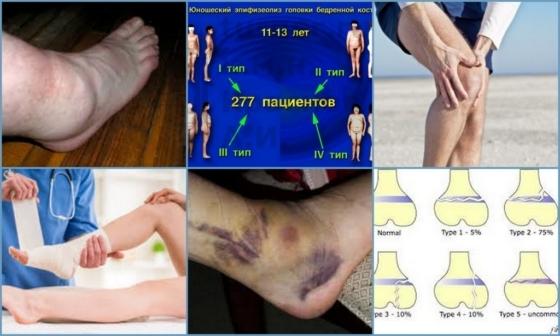 Эпифизеолиз — что такое, причины, симптомы и лечение