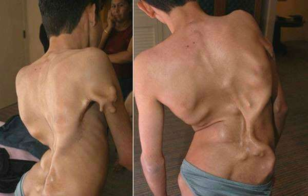 Лечение миозита мышц в домашних условиях