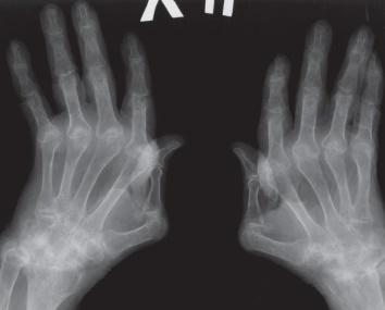 Рентген стадии ревматоидного артрита по признакам и активности