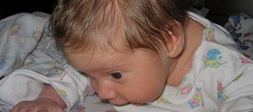 Диагностика рахита у ребенка: методы обследования