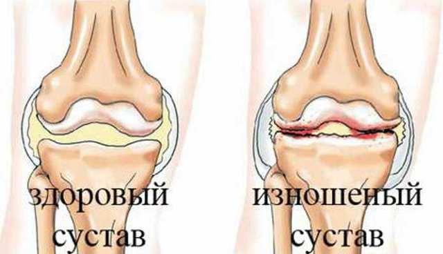 Народные средства при артрозе коленного сустава — эффективные рецепты