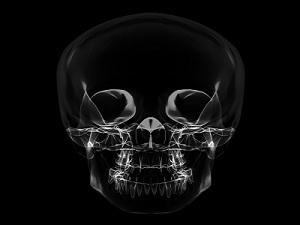 Остеома кости: диагностика, лечение, виды и фото