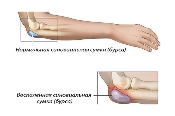 Болит локоть при нажатии на кость — что делать и чем лечить