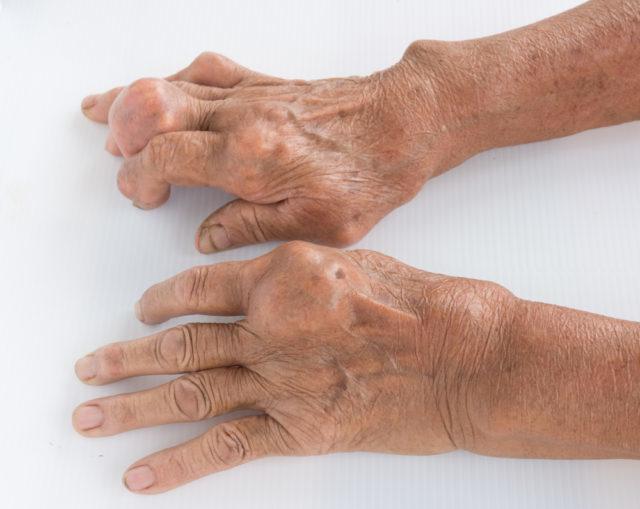 Физиотерапия при лечении подагры: методы и отзывы о результатах