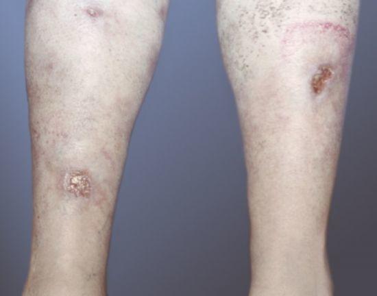 Болит левая нога от бедра до стопы лечение