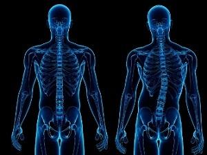 Сколиоз: виды, причины, признаки, лечение, диагностика