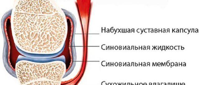 Антибиотики при синовите - выбираем эффективный препарат