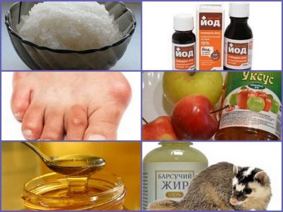 Сало при лечении подагры: употребление и способы применения