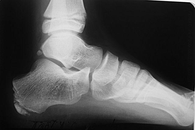 Болезнь Шинца - причины, симптомы и методы лечения