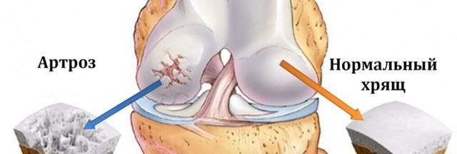 Польза можжевельника при заболеваниях суставов