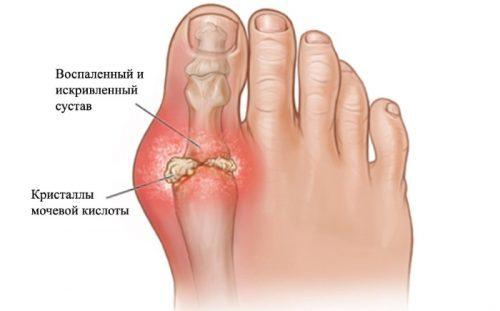 Артроз нижних конечностей: симптомы, лечение, фото