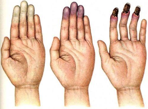 Почему немеет безымянный палец: причины и лечение