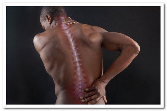 Миофасциальный синдром - причины, симптомы и лечение