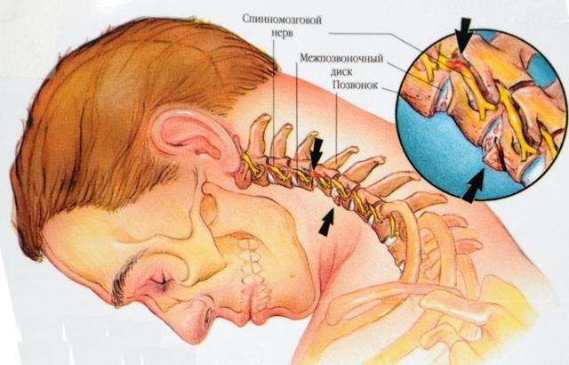 Последствия остеохондроза шейного, грудного и поясничного отделов позвоночника