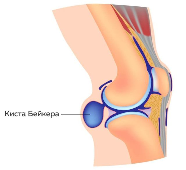 Лечение кисты Бейкера коленного сустава народными средствами