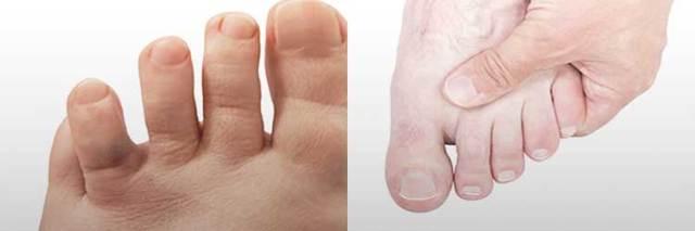 Перелом пальца на ноге — как выявить и чем лечить