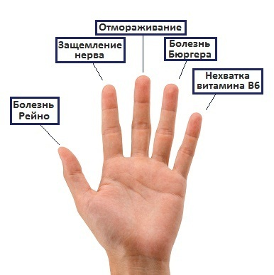 Немеет кончик указательного пальца на правой руке