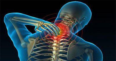 Мазь от боли в шее: перечень эффективных средств