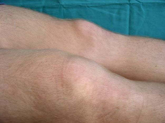 Болезнь Кенига: диагностика, стадии, лечение и последствия