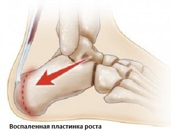У ребенка болят ноги: причины, лечение и профилактика