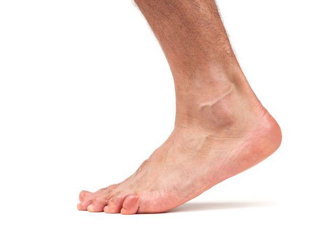 Эндопротезирование голеностопного сустава: подготовка, ограничения