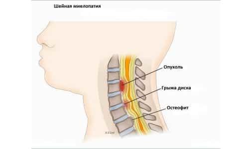Миелопатия шейного отдела позвоночника: симптомы, лечение, виды