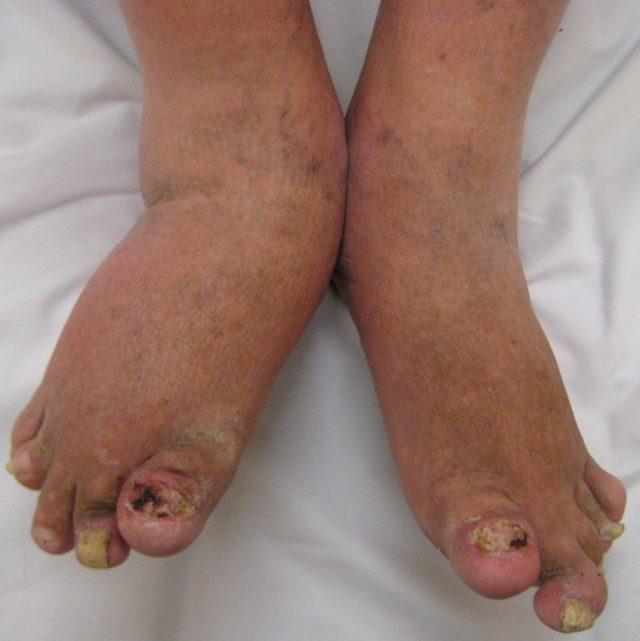 Болезнь Стилла у взрослых: симптомы, лечение, фото