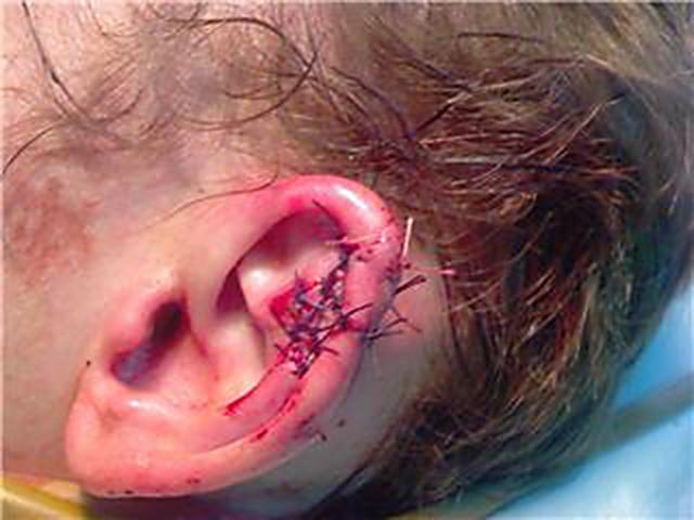 Перелом уха: симптомы, лечение и восстановление