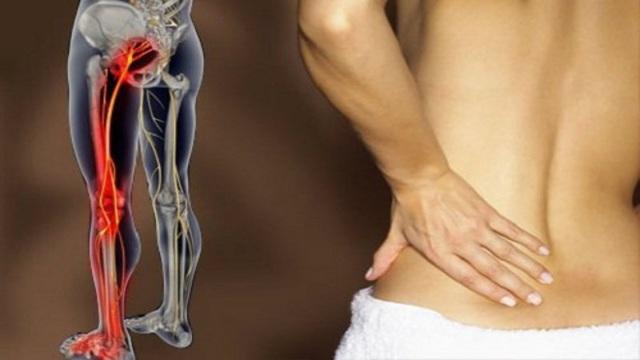 Упражнения при защемлении седалищного нерва и боли в ноге